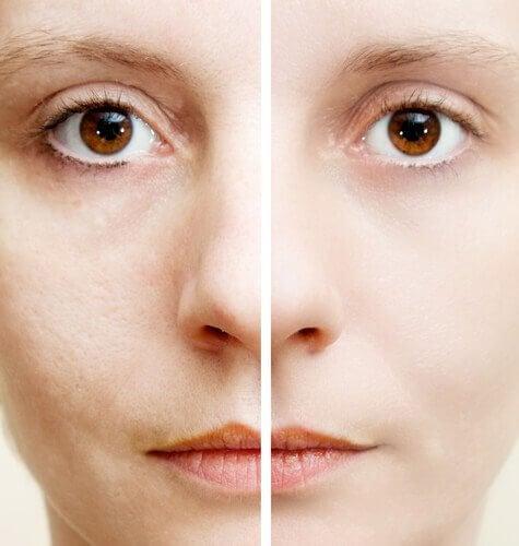 5 ingrédients naturels qui aident à éliminer les taches sombres