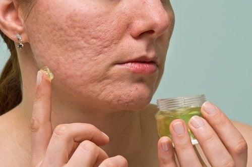 La soude et le jus de citron pour le blanchiment de la peau