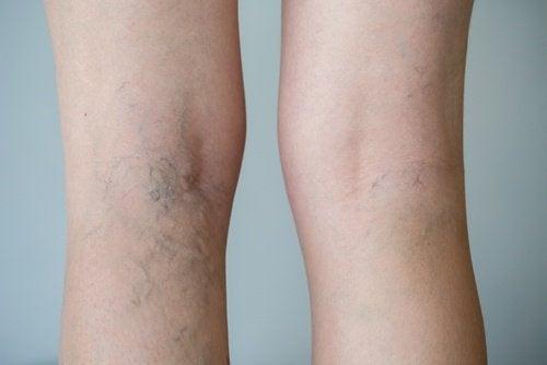 Découvrez les aliments qui favorisent la circulation sanguine dans les jambes