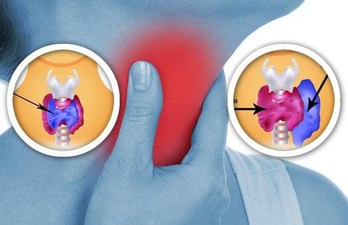 8 produits pour le foyer qui affectent la thyroïde