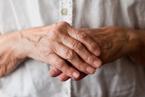 Accepter l'arthrite rhumatoïde.