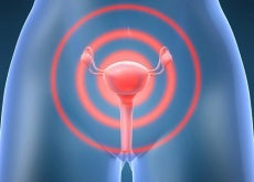 Cancer-de-l-uterus-matriz-500x383