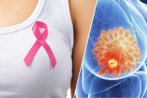 10 signes qui peuvent révéler un cancer du sein