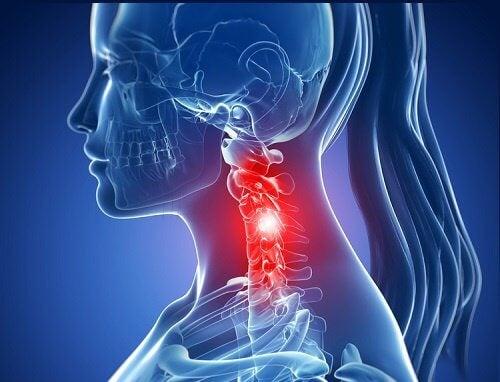 Spondylose cervicale : symptômes et traitements