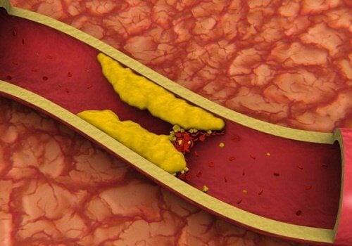 8 infusions pour réduire le cholestérol