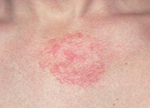 5 remèdes maison pour soigner une dermite