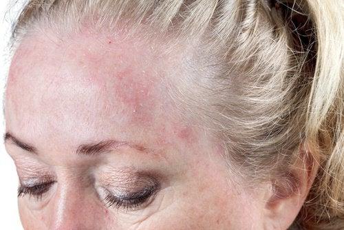 recommandations pour éviter la dermite