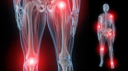 Les causes et traitements des douleurs articulaires nocturnes provoquées par l'arthrite