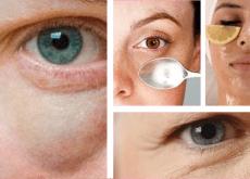 Poches-sous-les-yeux-500x345