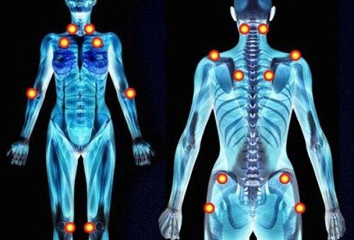 douleurs Fibromyalgie