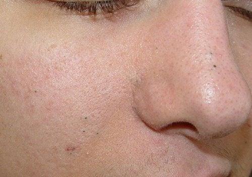 Les types du nettoyage de la peau de la personne