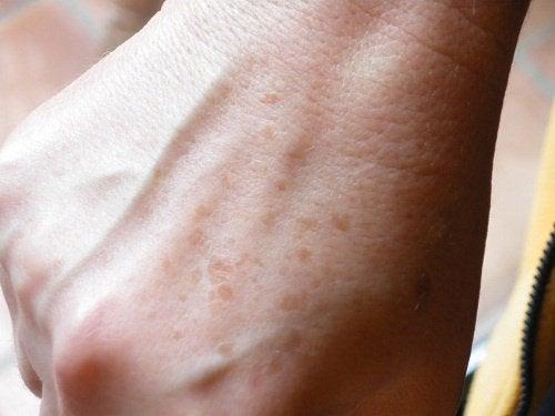 Des remèdes maison contre les taches sur la peau