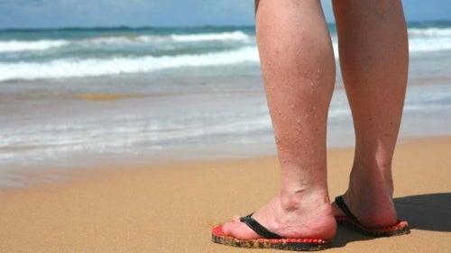Règles à suivre pour diminuer l'impact des varices en été