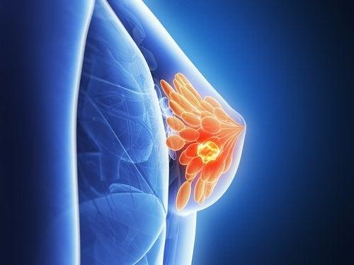 7 mythes et réalités sur le cancer du sein