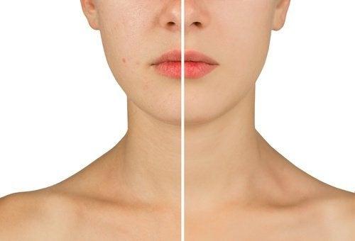Combattre-l-acne-500x340