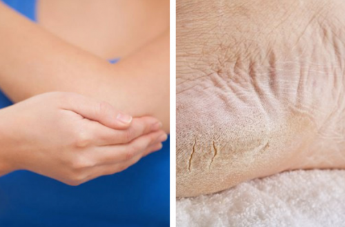 Atténuez la sécheresse des pieds et des coudes en une semaine