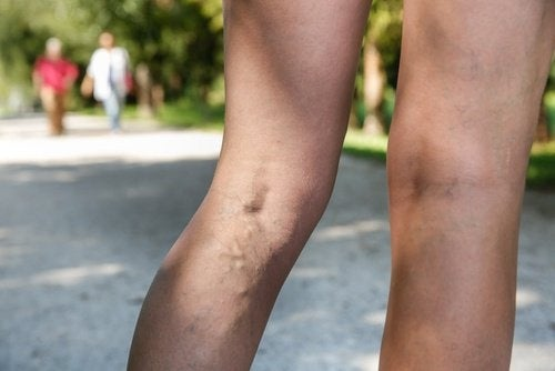 Les veines varices dans les jambes.