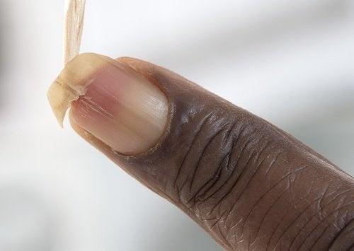 Comment renforcer les ongles cassants ?