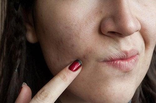 Les 7 erreurs commises dans le soin de la peau