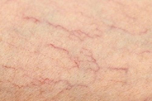 Comment éliminer les veines varices au niveau des jambes?