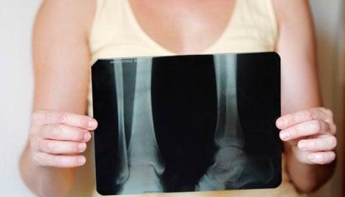 Comment conserver une bonne densité osseuse à la ménopause ?