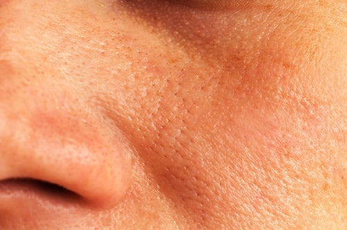 Remèdes naturels pour refermer les pores ouverts