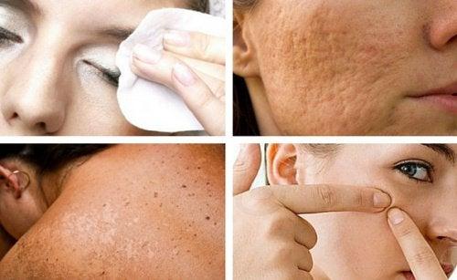 7 habitudes qui nuisent à la santé de votre peau et que vous pouvez éviter