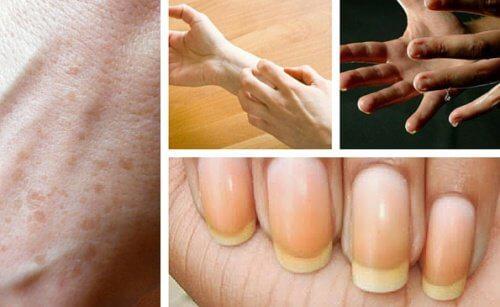 9 choses intéressantes que les mains disent sur notre santé
