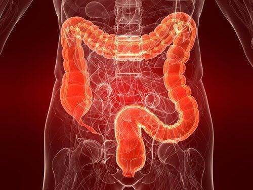 La colite ulcéreuse : causes, symptômes et traitement