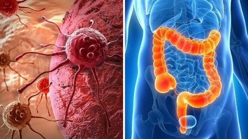 Comment détecter les symptômes du cancer du côlon ?