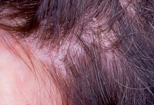 Un traitement pour l'eczéma sur le cuir chevelu