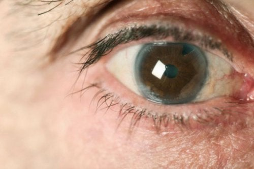 Le glaucome : quand arrive-t-il et comment l'éviter ?