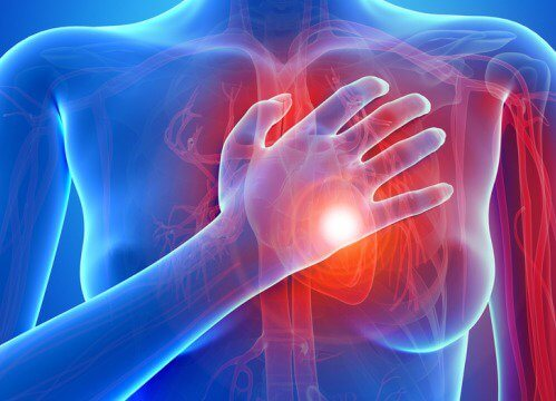 Maladie-cardiaque