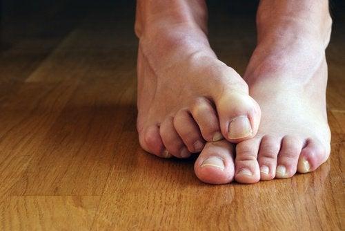 comment traiter naturellement le pied d'athlète