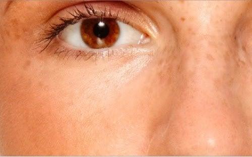 la peau parmi les parties du corps qui sont affectées par le stress