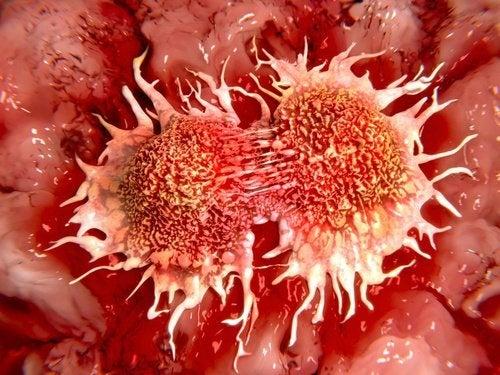 Therapie-anti-cancer-au-citron-congele-500x375