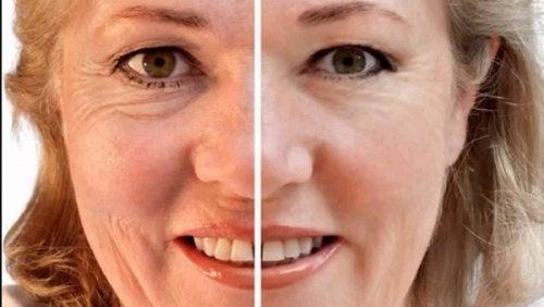 Les masques pour la personne avec le miel pour la peau sensible