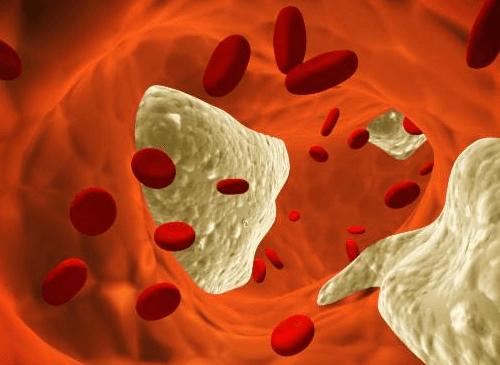Cholesterol-dans-le-sang-500x365