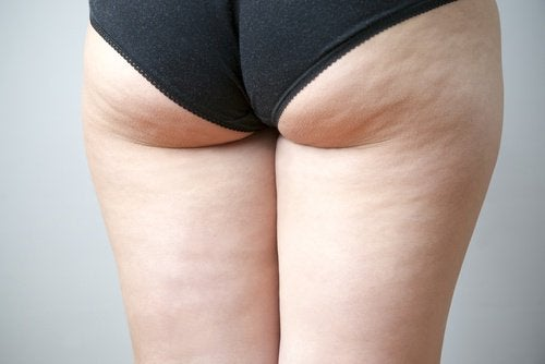 Le brossage à sec contre la cellulite.