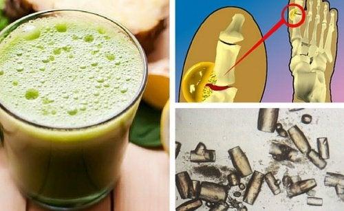 Comment éliminer l'acide urique naturellement ?