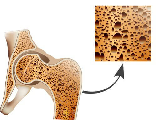 le corossol prend soin des os et prévient l'osteoporose