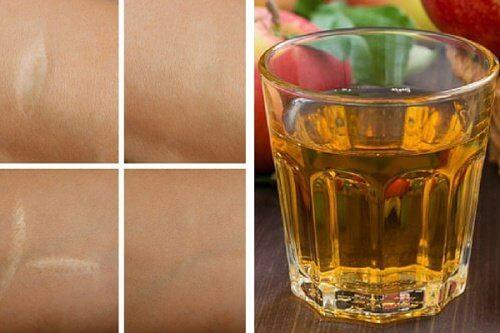 Une lotion tonique antioxydante pour les rides, les coups de soleil et les cicatrices