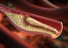 cholesterol-shutterstock_181080389-500x327