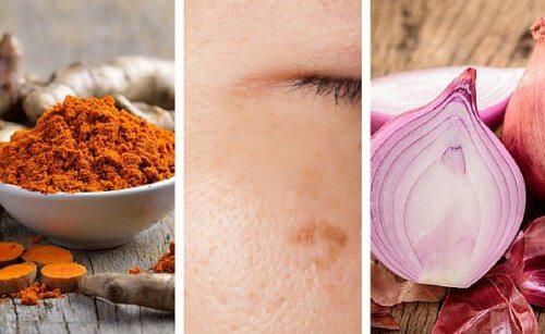 Vous avez des taches sur la peau ? Voici 6 remèdes qui vous aideront à les atténuer