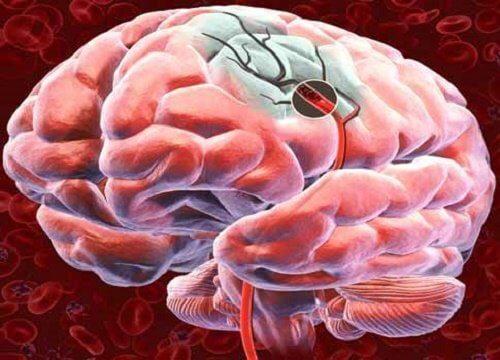 Quels sont les signaux d'alerte d'une hémorragie cérébrale et comment la prévenir ?
