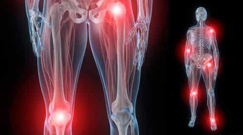 5 solutions naturelles contre la rigidité articulaire provoquée par l'arthrite