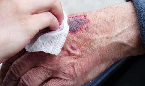 Les erreurs que nous commettons pendant les premiers soins