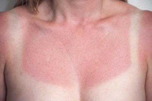 5 remèdes maison pour soigner immédiatement les coups de soleil