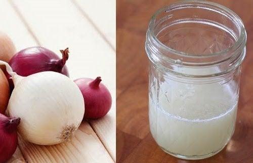Comment utiliser du jus d'oignon pour contrôler la chute des cheveux ?