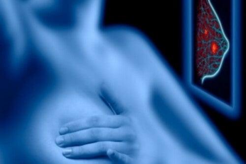 Les risques d'une mammographie sont-ils plus importants que leurs bienfaits ?